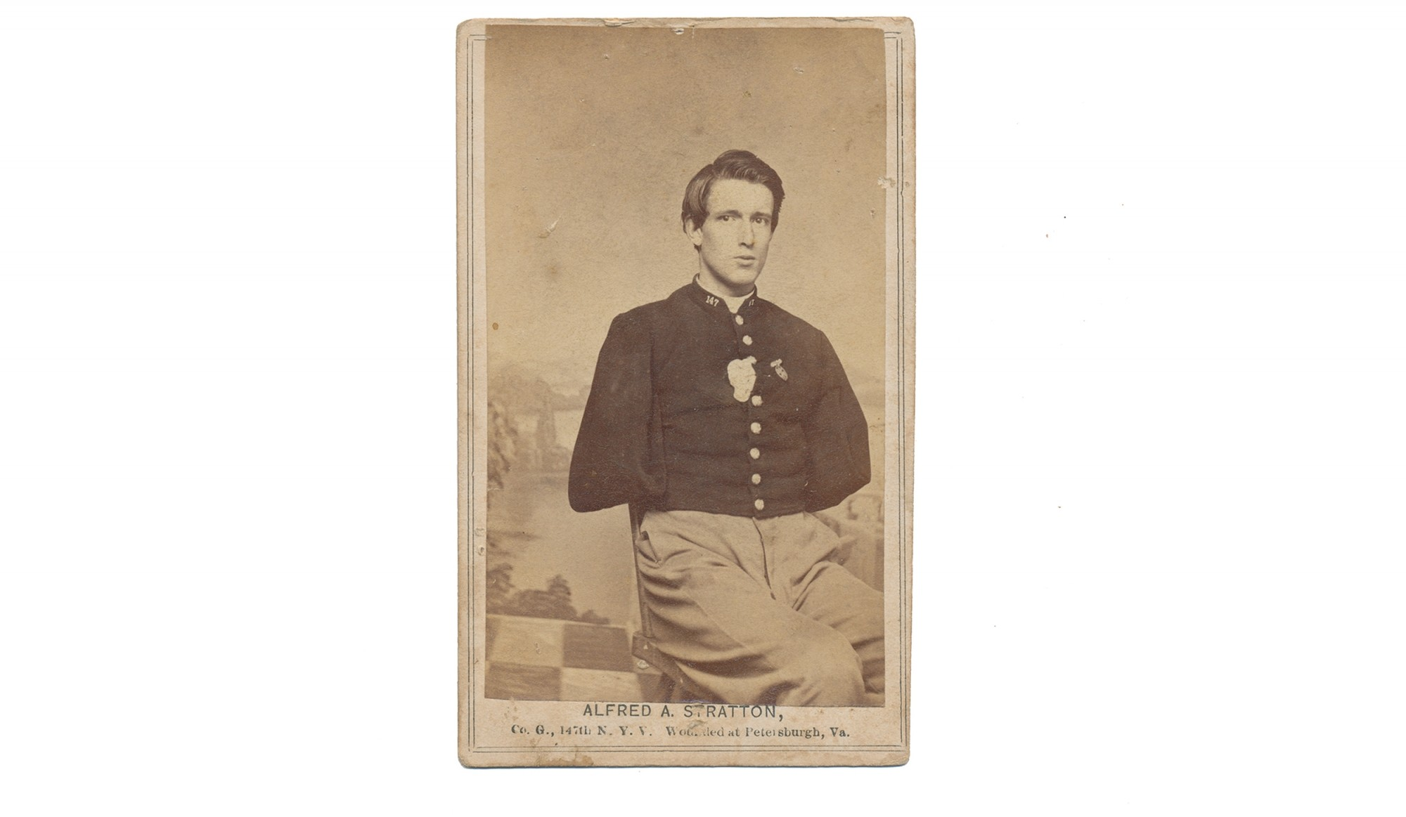 CDV 147TH NEW YORK DOUBLE AMPUTEE