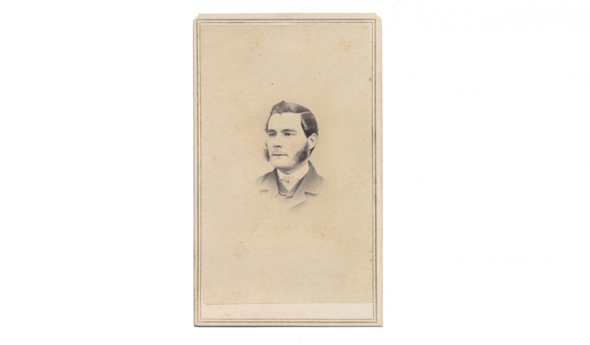 CDV BUST VIEW OF 11TH VERMONT SOLDIER WOUNDED AT WELDON RAILROAD
