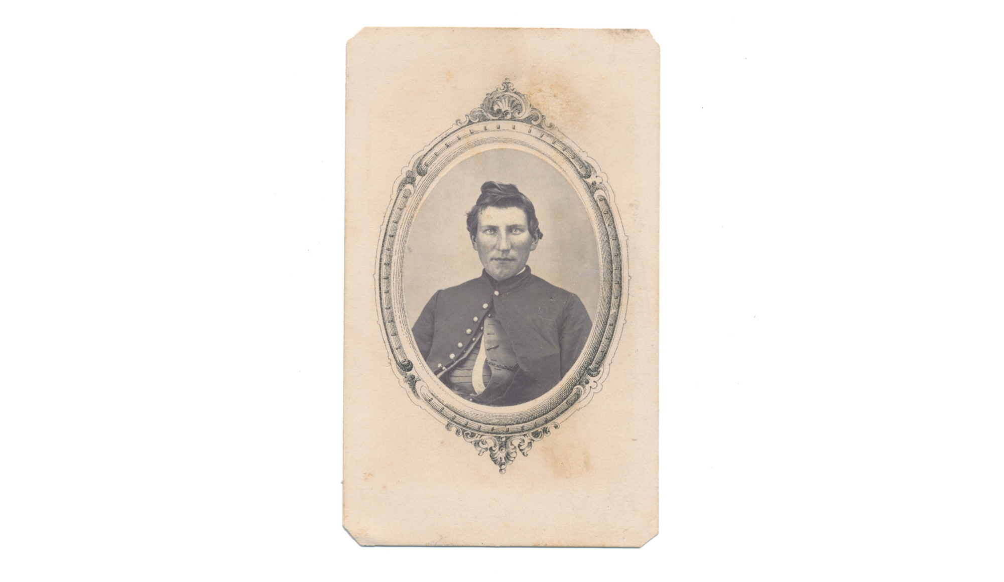 BUST VIEW CDV OF 4TH VERMONT SOLDIER WOUNDED AT WINCHESTER
