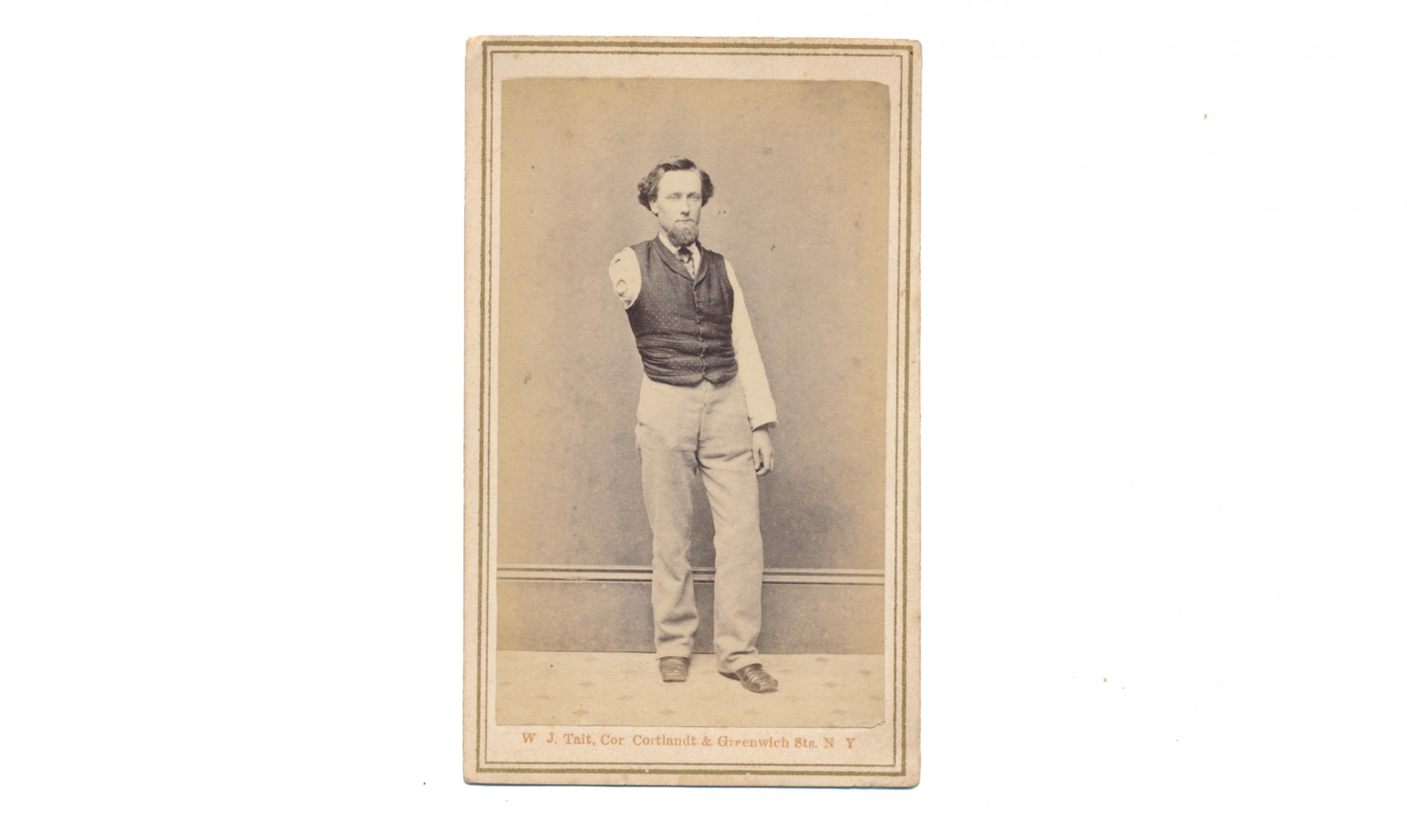 CDV OF AMPUTEE CIVIL WAR SOLDIER