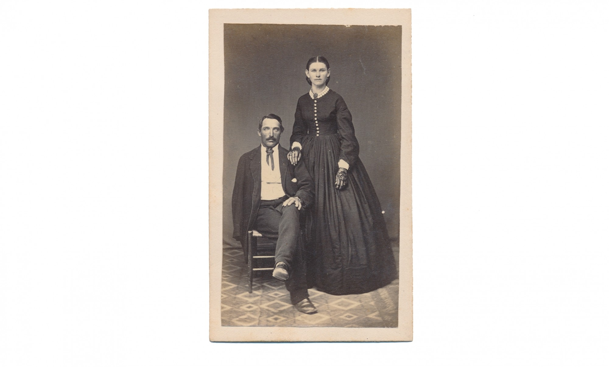 CDV OF AMPUTEE MAN AND WOMAN